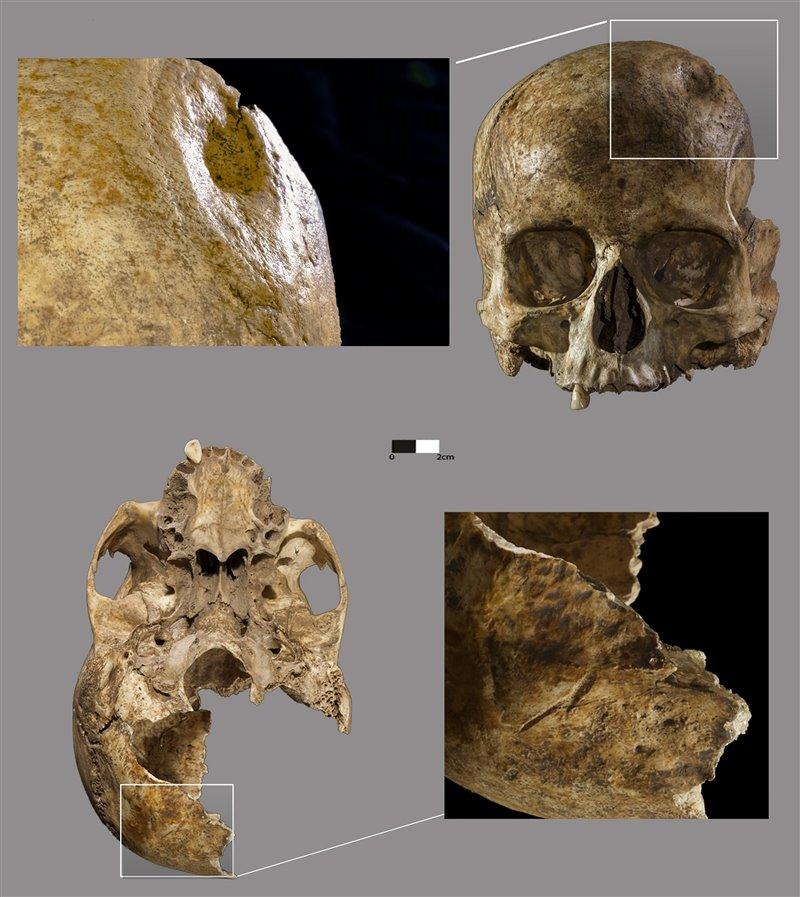 Lesiones y marcas de corte en el cráneo femenino de La Dehesilla. García-Rivero et al.
