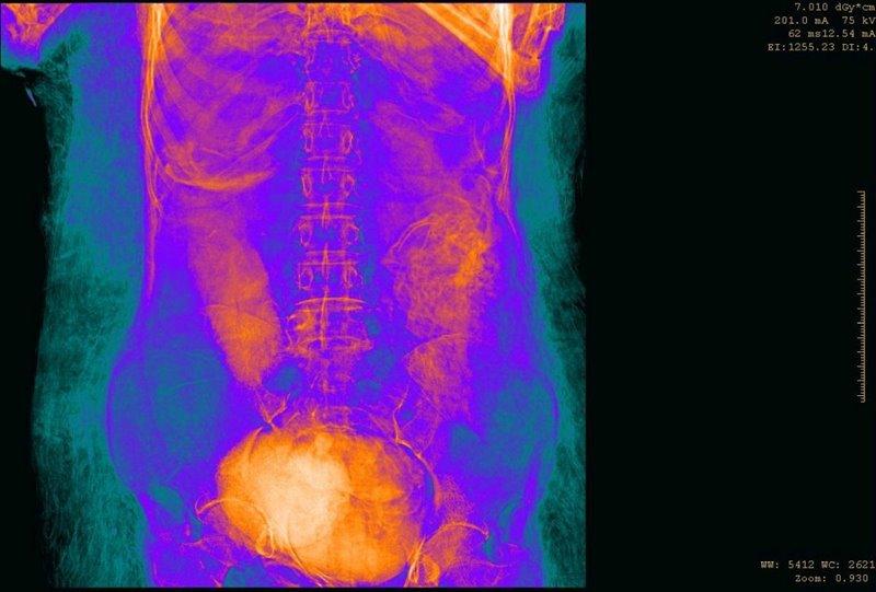 Parte media del cuerpo de la momia con el feto visible en la parte inferior.
